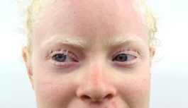 Kym Crosby is the anchor relay runner on Chico State's track team, is legally blind and training for the Rio 2016 Paralympics. Crosby is albino, which means there is no pigment in her hair, eyes or skin.